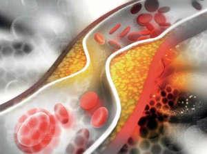 Curcuma im Zusammenhang mit Cholesterin